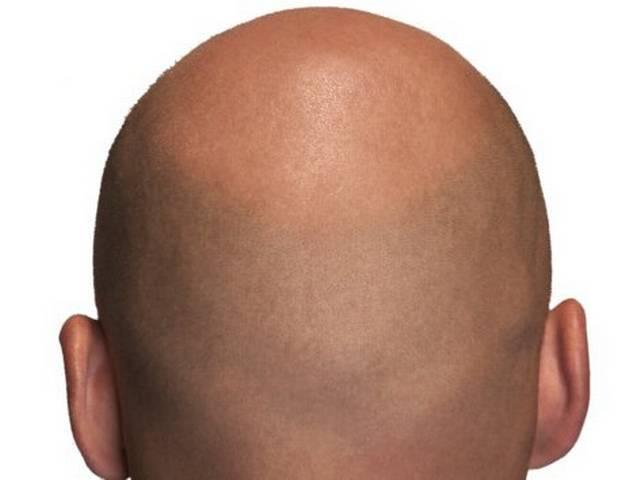 good new for bald people