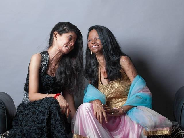 acid attack victims open cafe in the city of love, agra