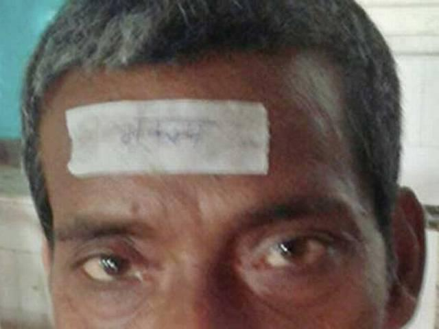 Bihar hospital pastes 'bhukamp' sticker on forehead of quake victims