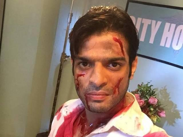 Karan Patel injured on 'Yeh Hai Mohabbatein' sets