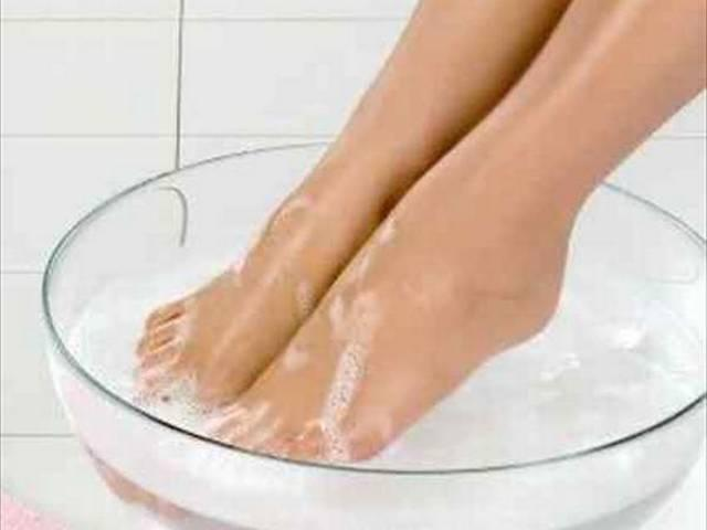 swelling of legs