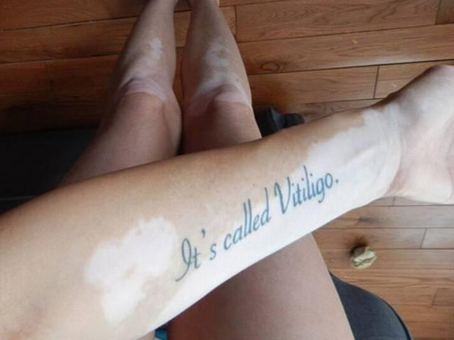 Tiffany Posteraro Got Tattoo To Stop People Staring At Her Skin Condition
