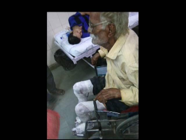 90 Years old Shopkeeper suffers severe burn in anti-encroachment drive in Outer Delhi