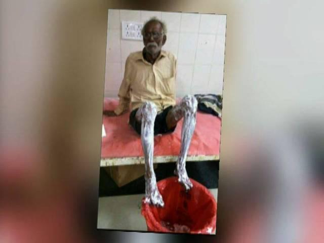 civic body workers splash oil on 90 year old