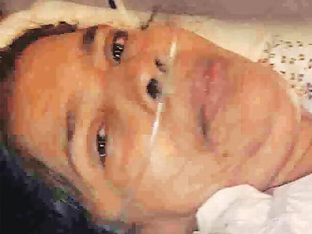 Indian maid's hand chopped by Saudi employer
