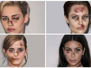 domestic violence campaign: angelina, Kardashian, Emma Watson given bruises for shocking