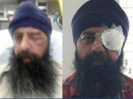 Sikh-American brutally assaulted in alleged hate crime in US