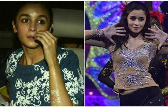 OMG! Alia Bhatt suffers burn injuries on face and hands!