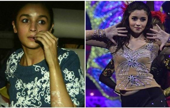 Alia Bhatt says her face is fine
