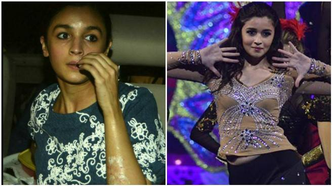 Alia Bhatt suffers burn injuries on face and hands
