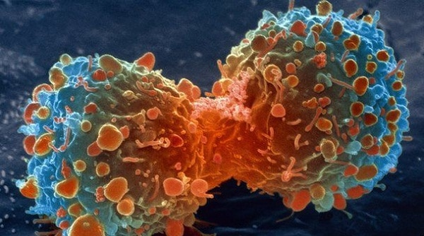 Healthy habits dramatically reduce the chances of getting cancer