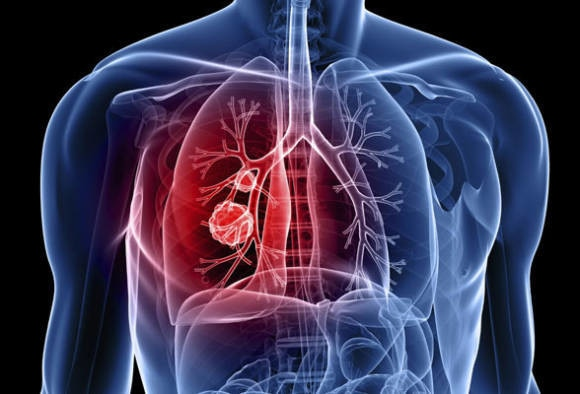34.8 percent delhiites suffer from poor lung health