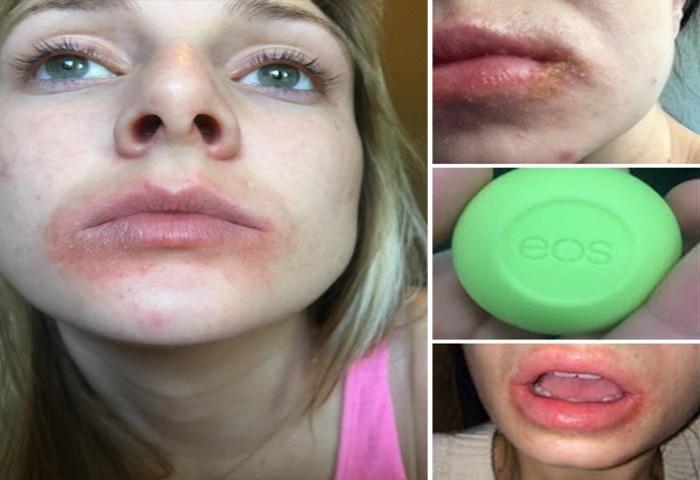 eos lip balm is injurious to lpis