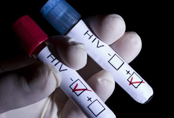 यहां शादी से पहले दूल्हा-दुल्हन को पास करना होगा HIV टेस्ट