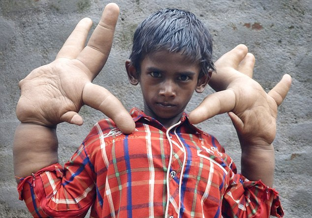Indian boy born with a rare illness which gave him giant hands