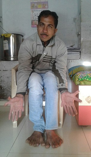 Indian carpenter with world record 28 fingers and toes
