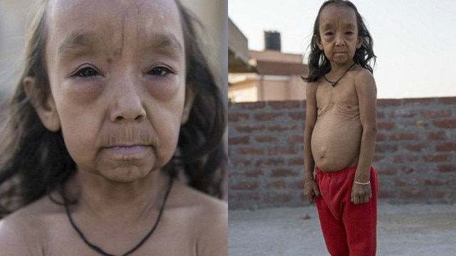 Children with wrinkly skin condition which makes them look years older