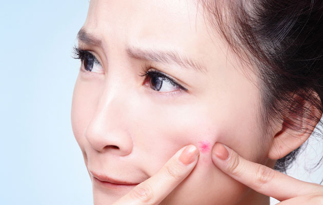 Treatments For Pimples
