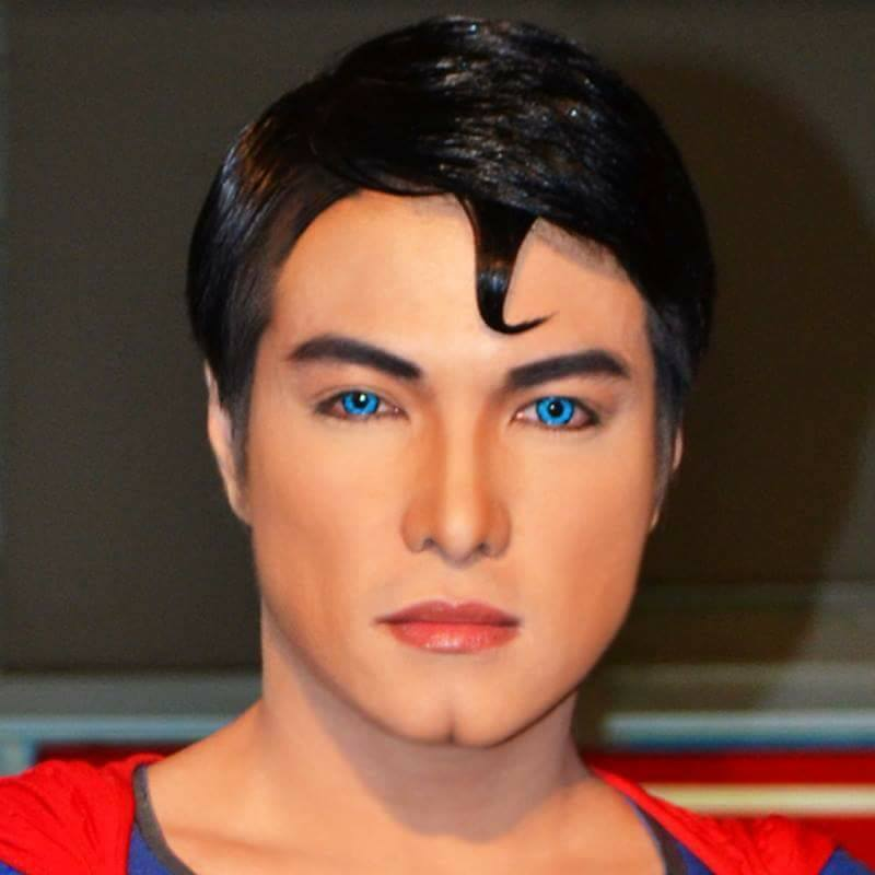 Filipino transforms into 'Superman' after 26 surgeries