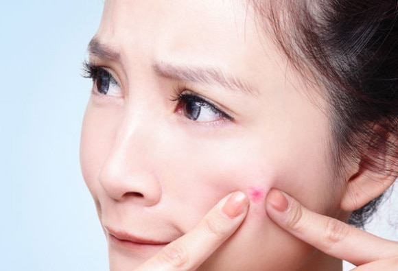 Mistakes To Avoid When Dealing With Pimples