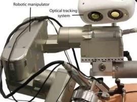 कान की सर्जरी में अब रोबोट करेगा मदद!