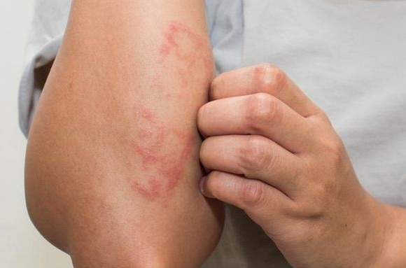 What causes eczema? Scientists blame it on lack of a protein skin barrier