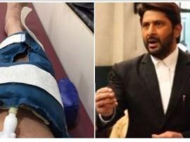 'जॉली LLB' अभिनेता अरशद वारसी को घुटने में लगी चोट