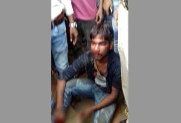 Uttar Pradesh: boy cut girl's hand in Lakhimpur kheeri