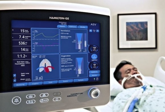 Delhi robotic engineer develops world's cheapest pocket ventilator