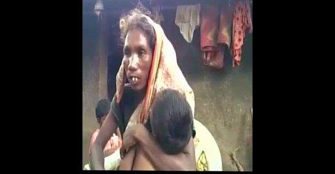 অনাহারে নয়! 'গ্রামের বদনাম' করায় আক্রান্ত মৃত কিশোরীর মা