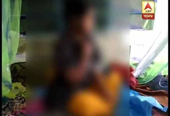 বিয়ের প্রস্তাবে রাজি না হওয়ায় ঘুমন্ত শ্যালিকার ওপর অ্যাসিড হামলা জামাইবাবুর