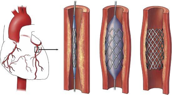 हृदयावरील शस्त्रक्रियेतील स्टेंटवर 270 ते 1000 टक्के नफा