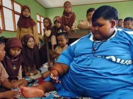 190 किलो वजनाच्या दहा वर्षीय चिमुरड्या आर्यवर शस्त्रक्रिया
