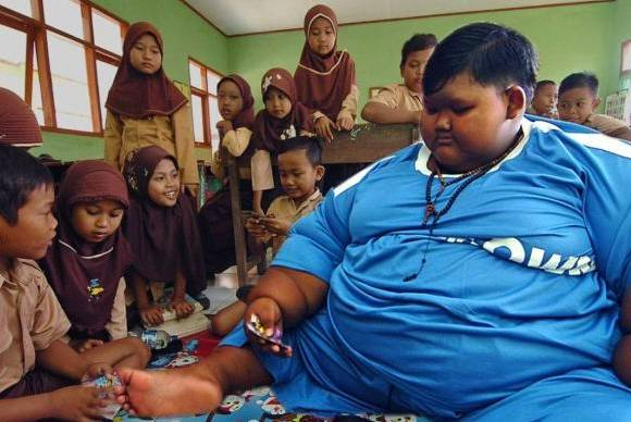 10-year-old Indonesian boy weighs 190 kg due to junk food addiction latest news