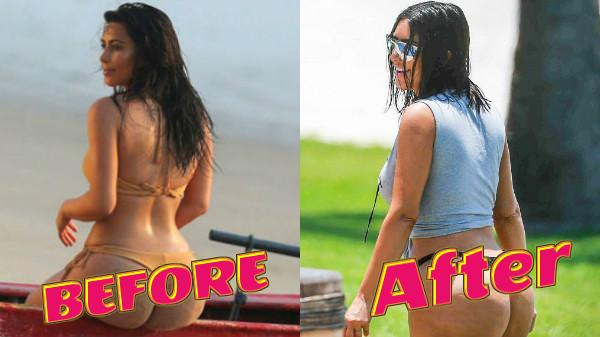OMG! Kim Kardashian's doctor says she has gone OUT OF CONTROL with her BIG BUTT!