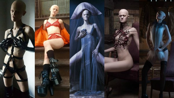 IN PICS: Meet Melanie Gaydos, 28-year-old toothless, bald & partially blind model who is breaking all fashion stereotypes!