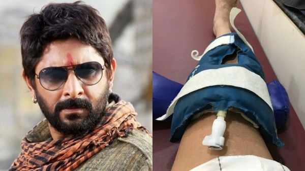 Bollywood actor Arshad Warsi suffers knee injury, advised bed rest