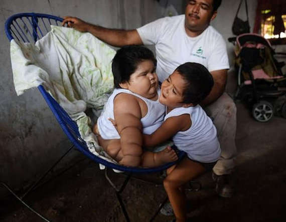 3-Overweight Mexican 10-month-old baby Luis Gonzales weighs 28kg