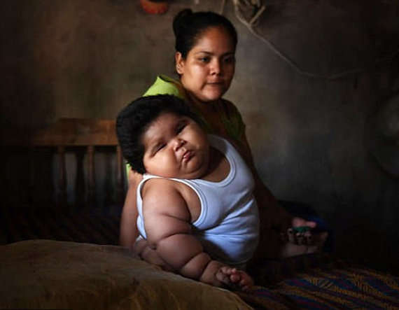 4-Overweight Mexican 10-month-old baby Luis Gonzales weighs 28kg